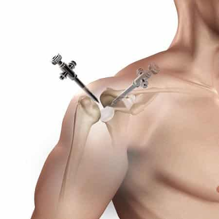 deep knots in shoulder blades