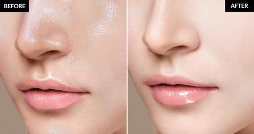 how to get rid of oily skin permanently