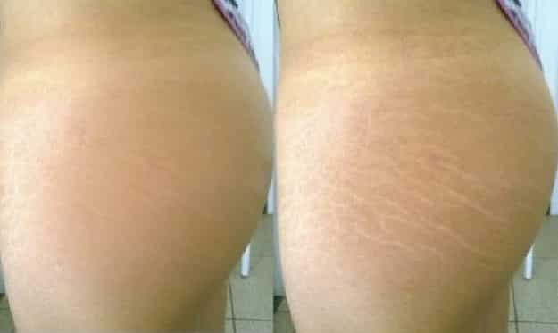 Open Box Cream Stretch Marks